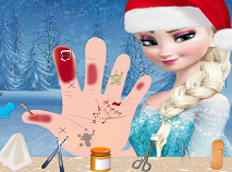Frozen Elsa's Hand Treatment